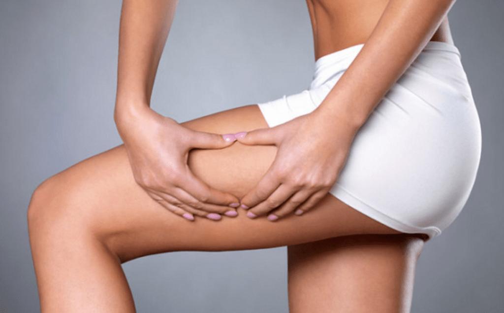 kan man bli av med celluliter