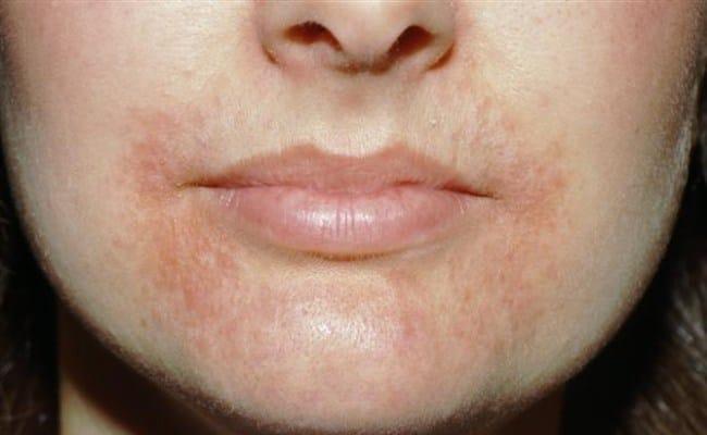 perioral dermatit kräm