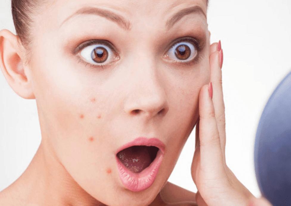 yttorr acne